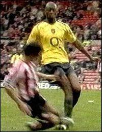 DIABY ANKLE